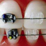 Ортодонтия...