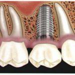 Часто задаваемые вопросы. Имплантация зубов...(ЧаВО)